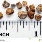 Obat Tradisional Batu Ginjal